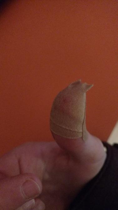 Bloody Thumb :-(